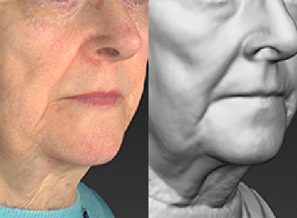 Grey mode contour evaluation image