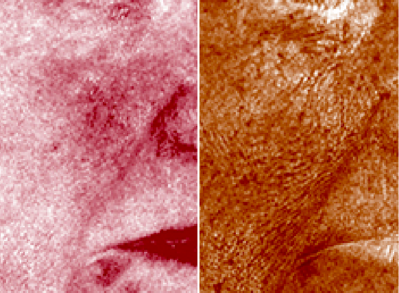 Quantify subsurface skin conditions image