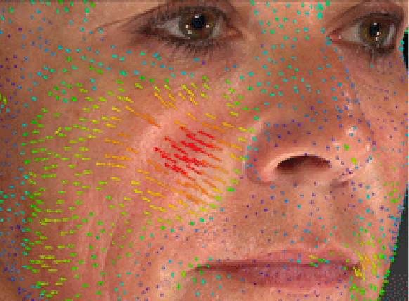 Markerless tracking image