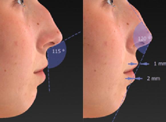 Automated measurement image