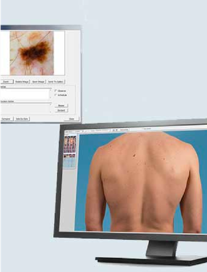 Veos DS3 lesion capture