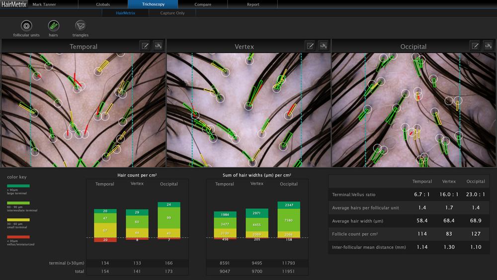 HairMetrix analysis image